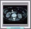 Las medias varicoso para embarazado las revocaciones