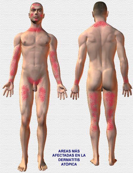 Que humedece para el baño atopichesky la dermatitis