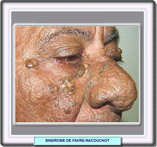 hexomedine solution acné wikipedia