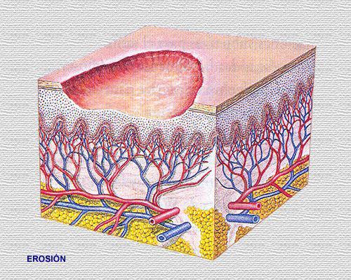 Que es la epidermolisis bullosa ( piel de cristal )