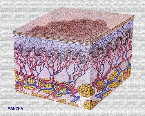 La hemosiderina... Incontinentia Pigmenti
