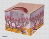 Узелок, папула (papula) - это второй инфильтративный элемент, который.