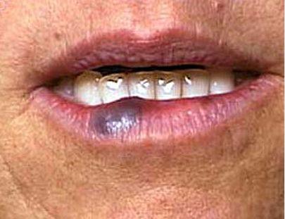 hemangioma labio inferior