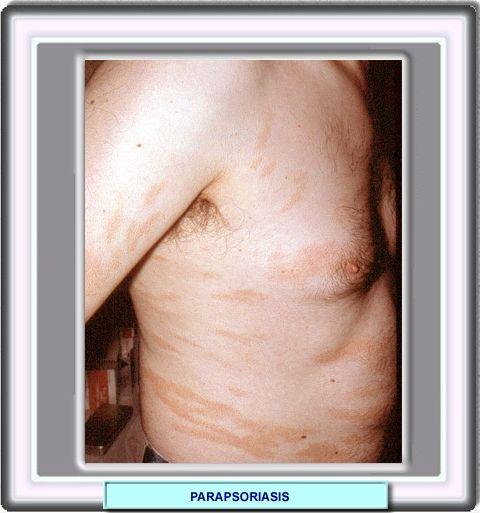 Las clínicas ekaterinburg atopichesky la dermatitis