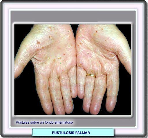 Atopitchesky la dermatite et la diathèse même