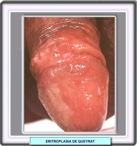 Diferencia entre pene circunciso y el normal