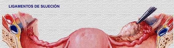 Ligamento cardinal