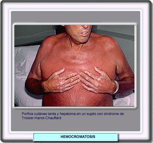 Sindrome tietze