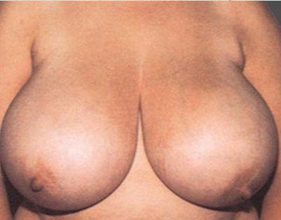 Hipertrofia virginal de la mama vbh