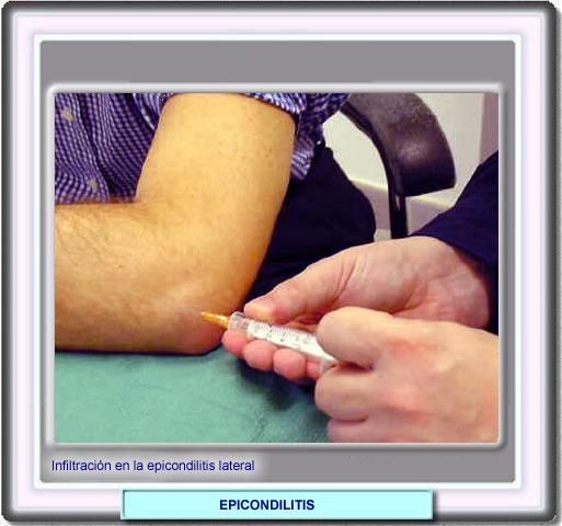 efectos de los esteroides parte 3